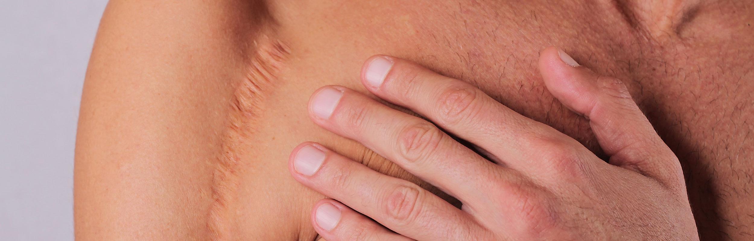 Traitement des cicatrices Homme en médecine esthétique à Rouen